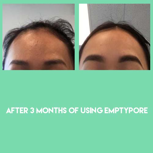 Before & after using Sebaceous Filament Extraction routine