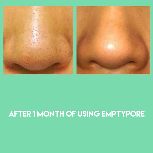 Results of sebaceous filament extraction